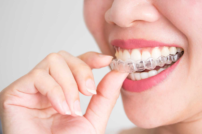 Teeth Straightening Colchester